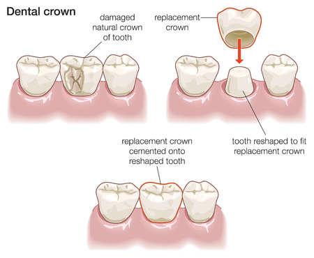 วิธีทําให้ฟันขาว dental crowns